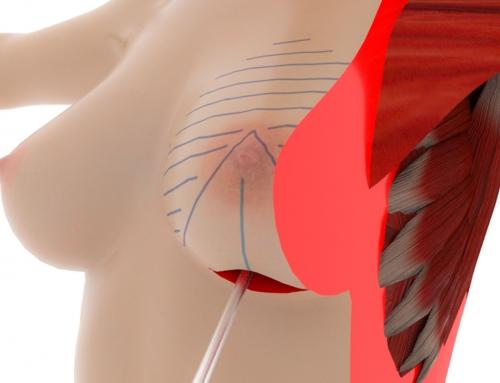 3D medico x Zenith System presentato a Miami 24° congresso ISAPS