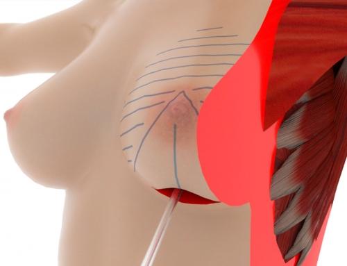 animazione 3D medico
